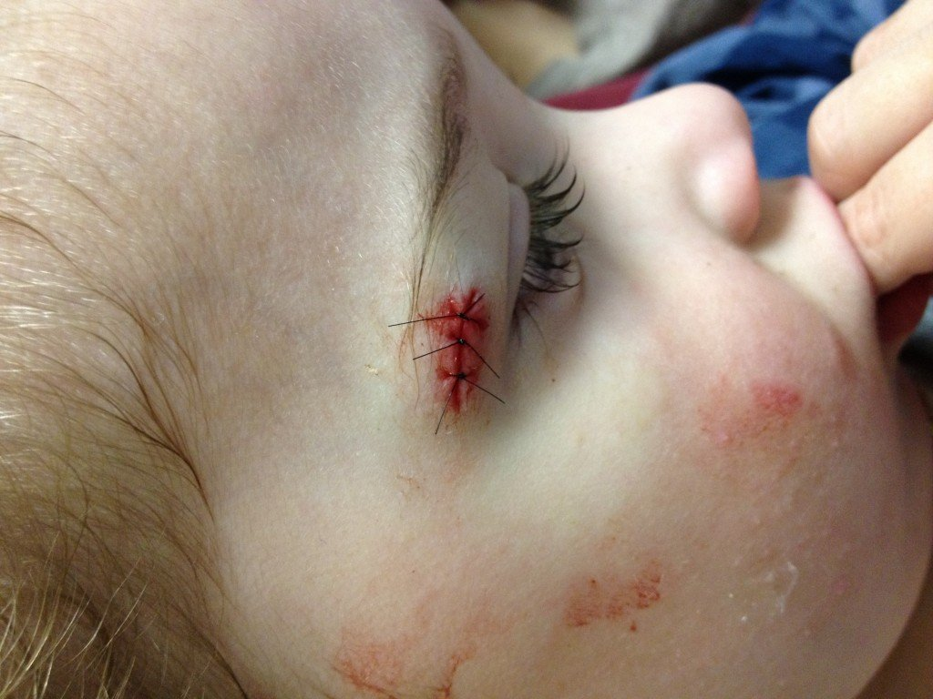 Toddler with stitches next to eye