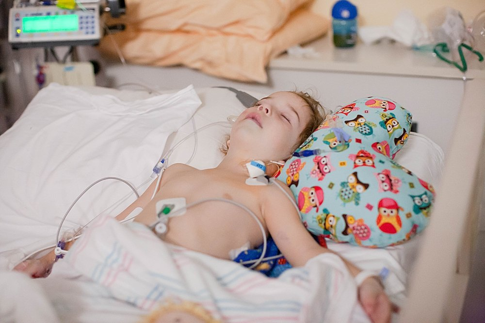Toddler in Cardiac Intensive Care Unit recovering from double aortic arch re-operation.