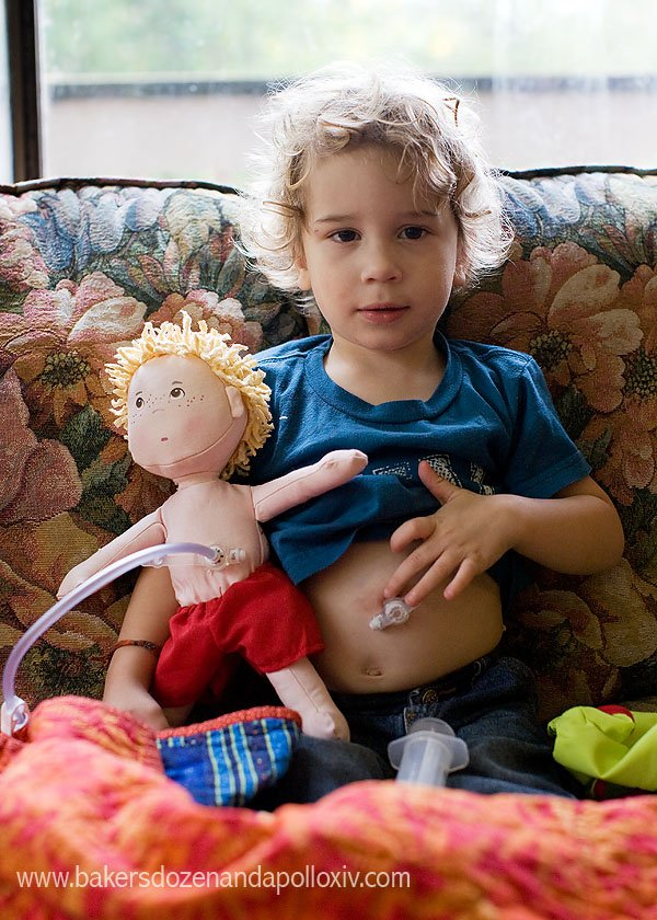 child with feeding tube with a  doll with feeding tube (g-tube)
