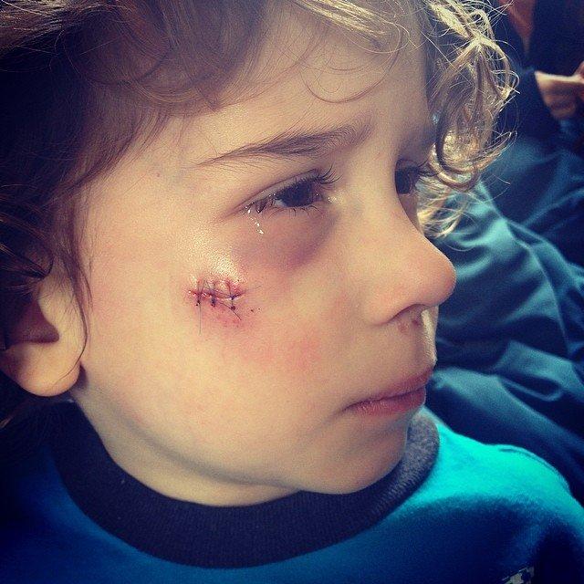 Apollo with three stitches in his face.