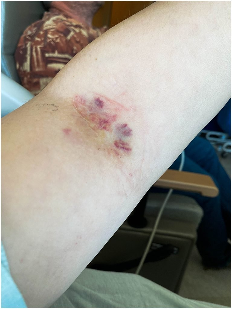 My arm after a blood draw. Is it connected to Factor V Leiden?